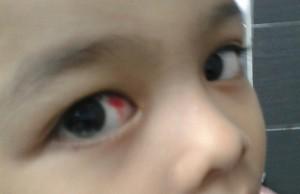 Contoh sakit Mata Rujuk doktor Dapat cmc ,,Sudah okay